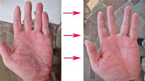 psoriasis and ultraviolet light psoriasis uv ls psoriasisfreeuk com