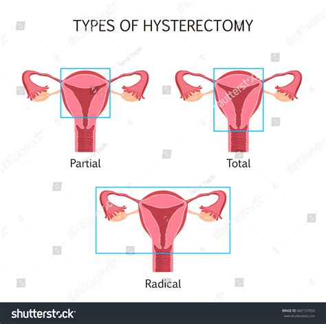 hysterectomy diagram types hysterectomy surgical removal uterus vector stock