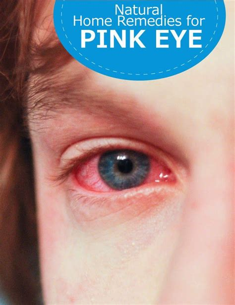 26 best images about help i pink eye on