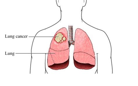 lung cancer diagram do you these 14 lung cancer symptoms