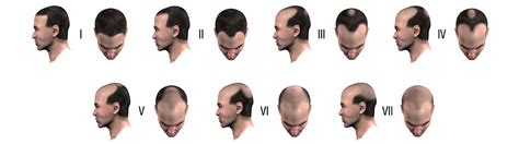 male pattern hair loss scale male pattern baldness causes treatments hair club