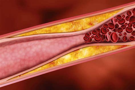 i vasi sanguigni arterie intasate erbe per ripulire i vasi sanguigni