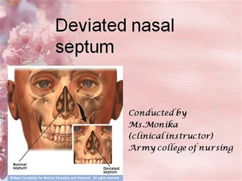 deviated septum diagram nasal fractures ppt image search results
