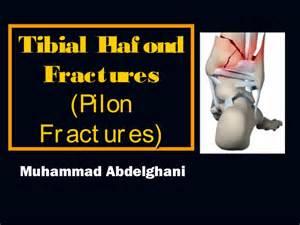 39 tibial plafond pilon fractures