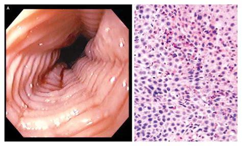 icd 10 food impaction esophagus eosinophilic esophagitis nejm