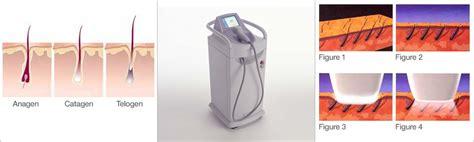 lightsheer diode laser for skin welcome to aesthetic laser care laser hair removal