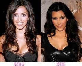 Kim kardashian s plastic surgery shocking new photos reality tea