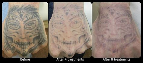 tattoo removal finger tattoos can be somewhat difficult due to the reduced