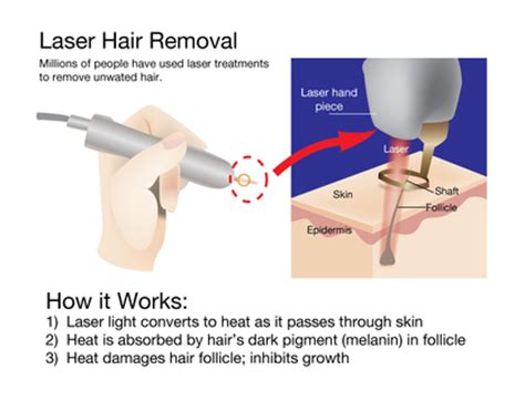 brazilian laser hair removal pictures does laser hair removal hurts is it worth the money