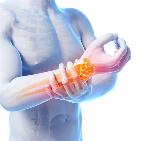 meteo web sindrome tunnel carpale fattori di rischio sintomi