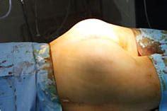 irritazione al sedere fistola sul gluteo cause sintomi diagnosi e trattamento
