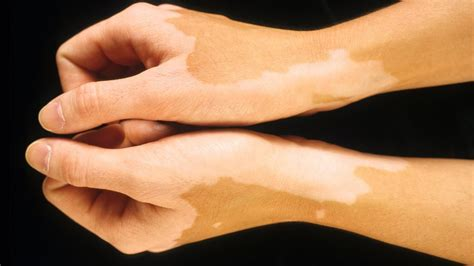 light spots on skin what causes light spots to appear on skin reference com