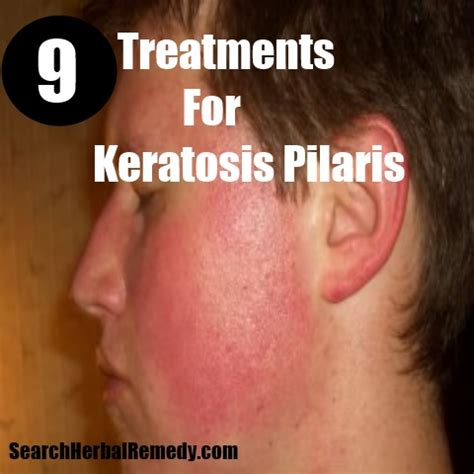 9 treatments for keratosis pilaris how to treat