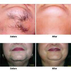 pulido electrolysis and laser hair removal