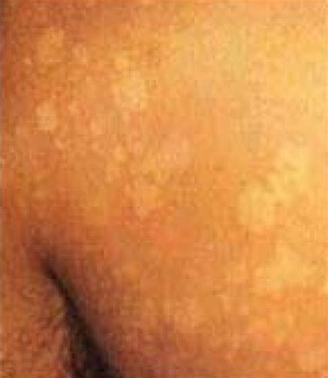 spots on skin white spots on skin causes pictures treatment symptoms diseases pictures