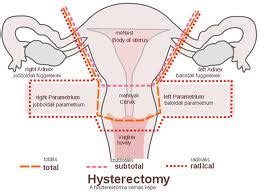 hysterectomy diagram hysterectomy diagram 28 images total abdominal