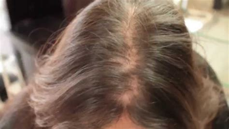 treating hair fall women over 50 hair loss in women treatment testimonial hair cubed youtube