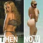 Coco Plastic Surgery Plastic Surgery Before And After