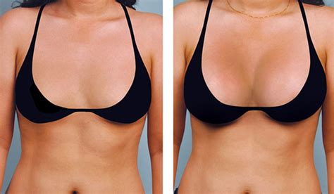 Augmentation Fill by Breast Augmentation Enlargement Premier Clinic Malaysia