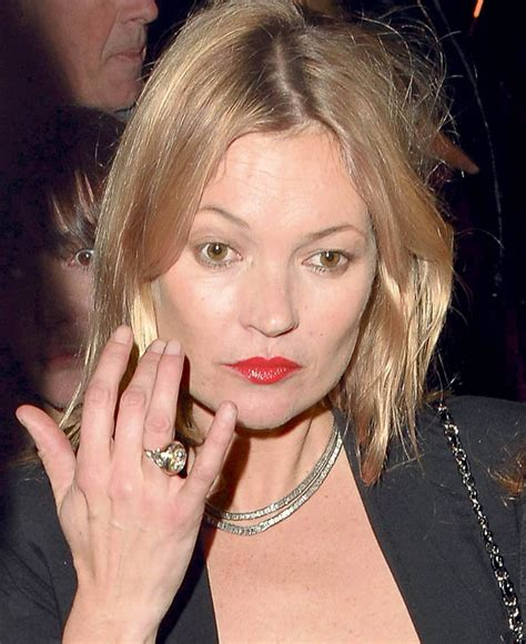 Anistons New Likes Kate Moss And Cocaine by Kate Moss The Model Was Seen With Mysterious White Marks