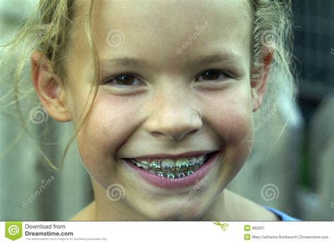 young teen girl face with braces brace face stock image image of charming child