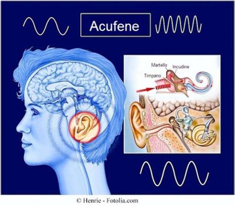 dolore orecchio interno sintomi degli acufeni cura e rimedi naturali