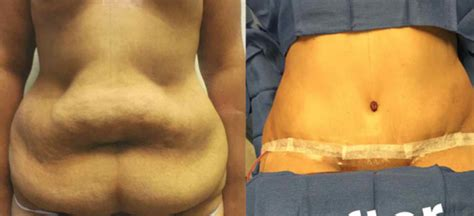 can i have a tummy tuck during c section tummy tuck after twins dr tarick smiley blog