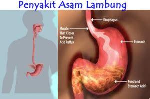 Obat Asam Lambung Gold G obat alami asam lambung naik jelly gamat gold g