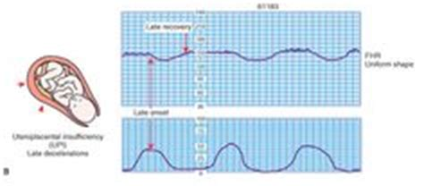 pattern of heart contraction ctg interprretation on pinterest monitor erudite and
