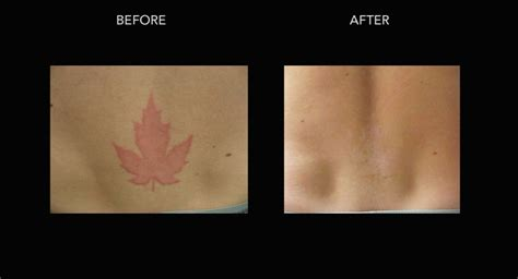 tattoo laser removal on black skin laser removal in kelowna with dr crippen dermmedica