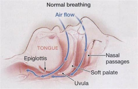 breathing heavily through nose sleep and neurology obstructive sleep apnea 101 the facts