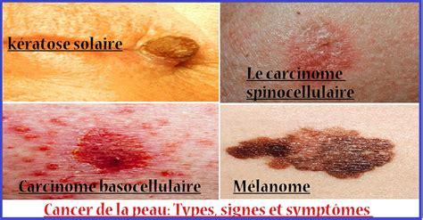 cancer de la peau types signes et sympt 244 mes sport et sant 233