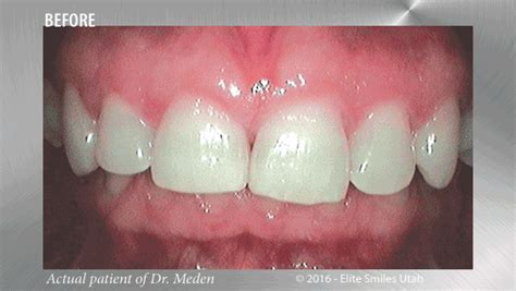 beforeafter meden animated dania elite smiles