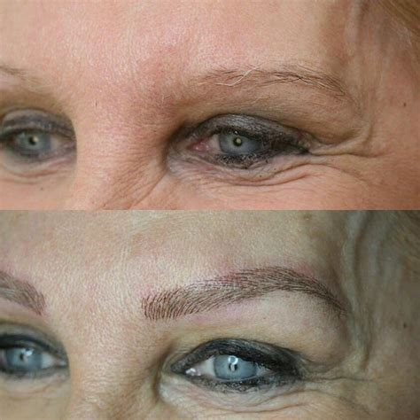 can eyebrow tattoo be removed everyday can be a brow day microblading