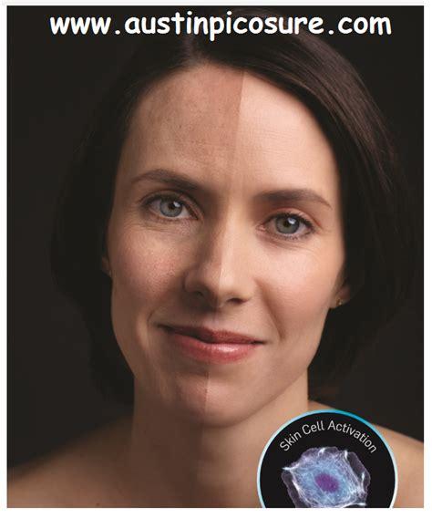 picosure focus lens array pigment melasma wrinkles