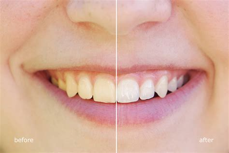 Teeth Whitening   What's the Best Way to Whiten Your Teeth