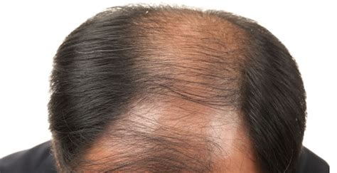 new discoveries in hair regrowth minoxidil for beards can minoxidil grow facial hair