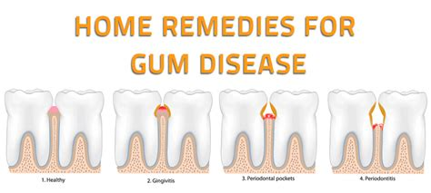 periodontal disease pictures posters news and