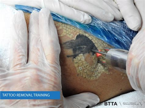 tattoo removal certification removal images laser international