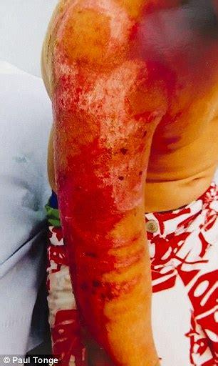 henna tattoo nottingham boy left with scars after henna tattoo in turkey sends him