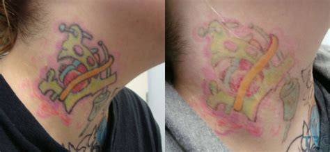 tattoos after laser removal laser removal voltaicplasma areton ltd