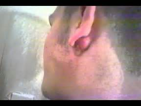 ear sebaceous cyst gets popped