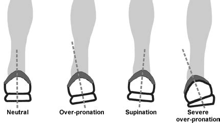 wear pattern definition better understanding of pronation finding the right