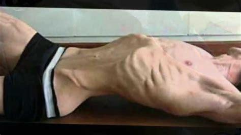 imagenes impactantes de bulimia consecuencias de la bulimia nerviosa trastornos
