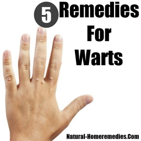 5 home remedies for warts treatments cure for