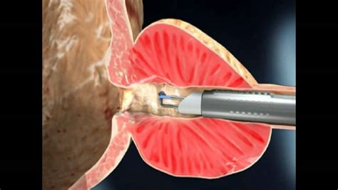 tur prostata plasmabutton vaporiza 231 227 o de prostata dr gilvan neiva