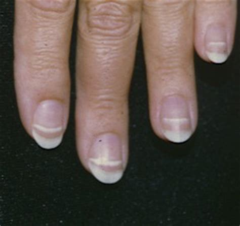 beaus lines how to recognize a beau line fingernail beau s lines the clinical advisor