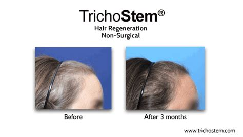 the female pattern hair loss review of pathogenesis and diagnosis before and after trichostem 174 treatment trichostem