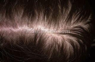female pattern hair loss dermnet how to reverse hair loss naturally arganlife arganlife