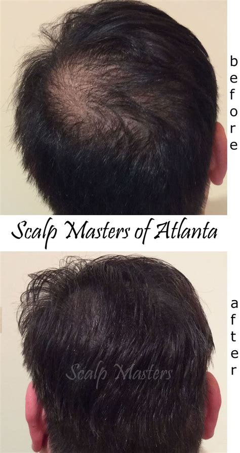 balding hair crowns the 25 best scalp micropigmentation ideas on pinterest